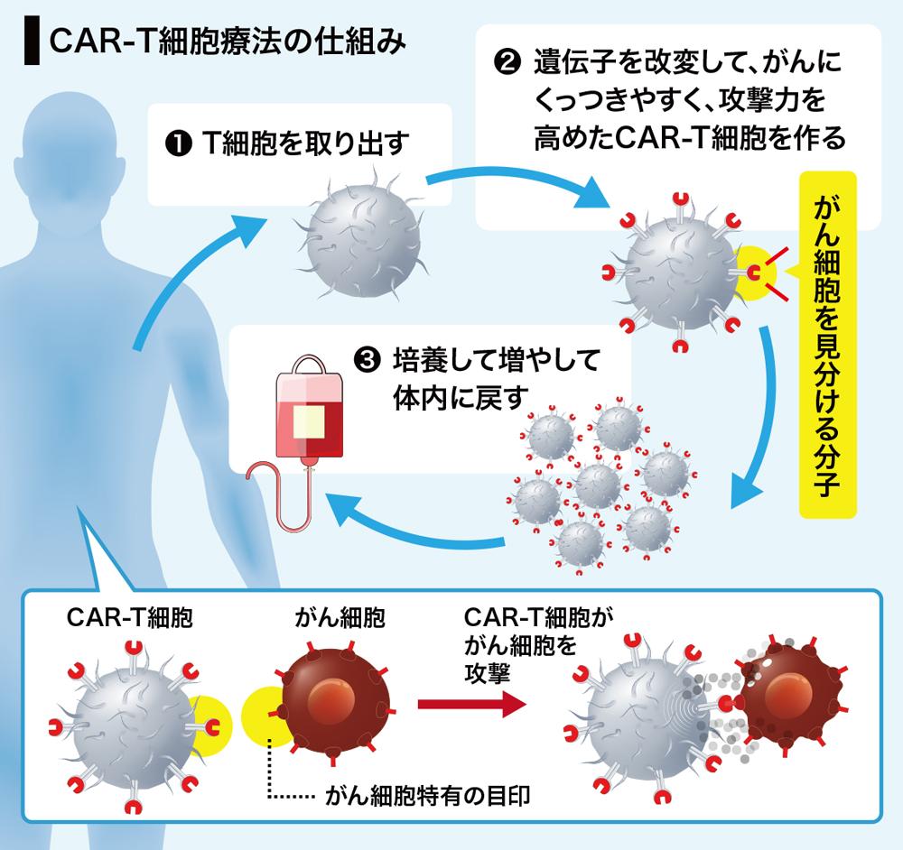白血病治療薬、3349万円のキムリアの実力はいかほど? 再発の報告も ...